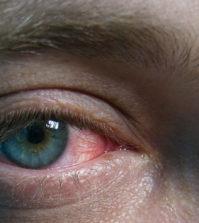 o-que-e-conjuntivite-alergica