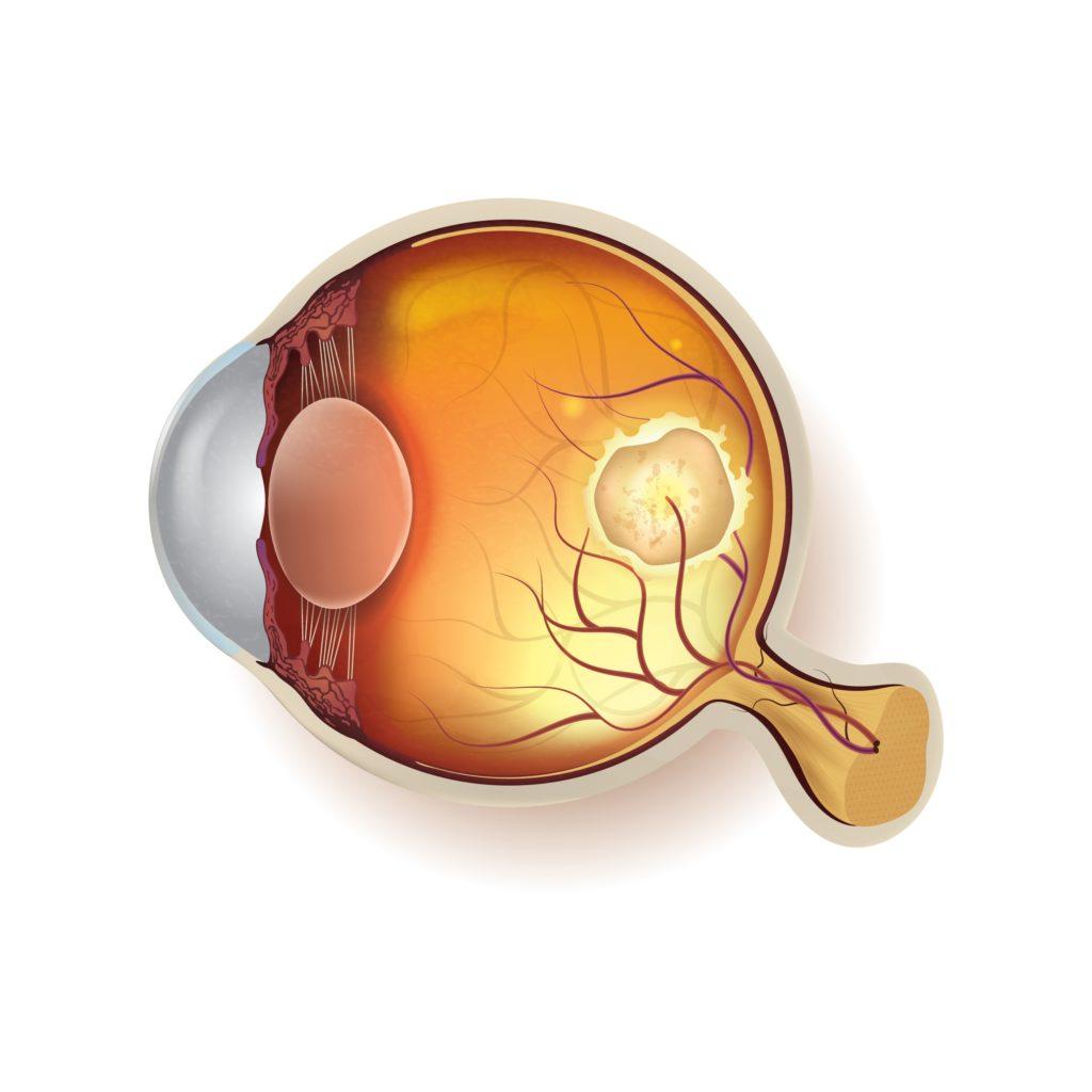 colírio para glaucoma